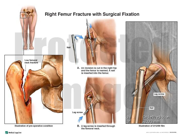 Right Femur Fracture