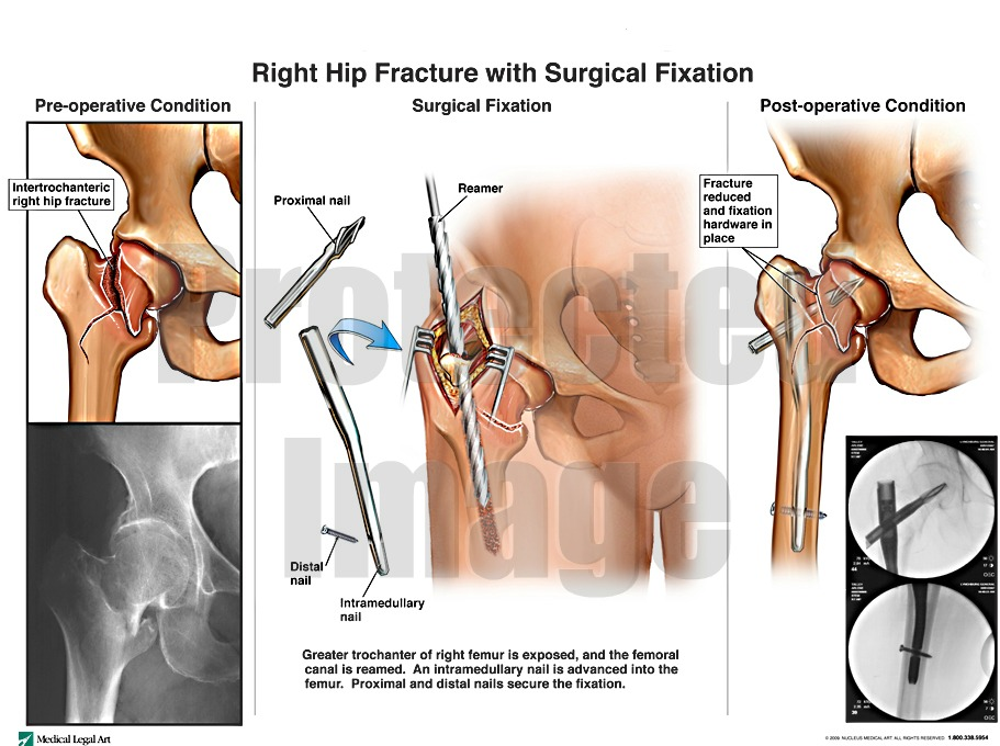 Right Hip Fracture with Surgical Fixation