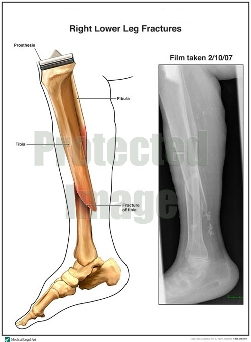 Lower Leg Fracture